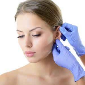 Otoplastie of oorcorrectie