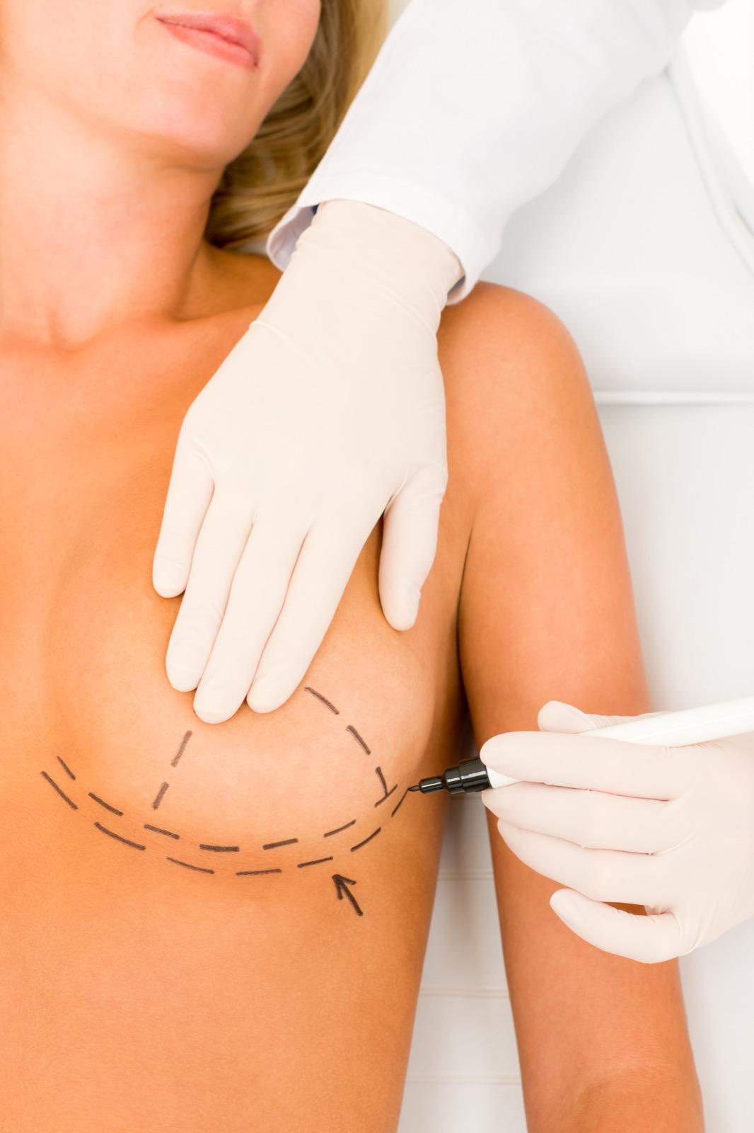 Correctie van asymmetrische borsten