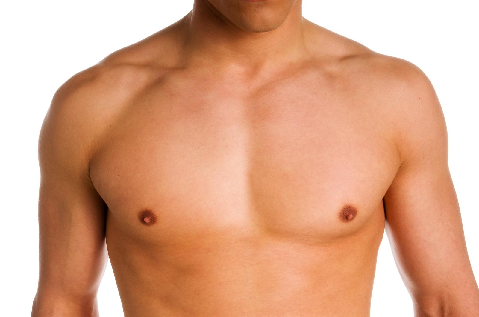 Correctie mannelijke borstvorming (Gynaecomastie correctie)